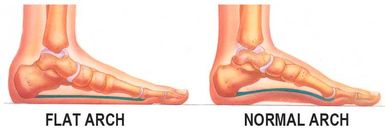 Flat Feet Arch - The Sole Clinic