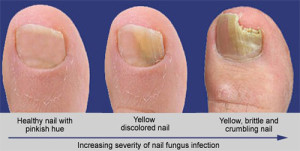 Fungus Toenail - The Sole Clinic