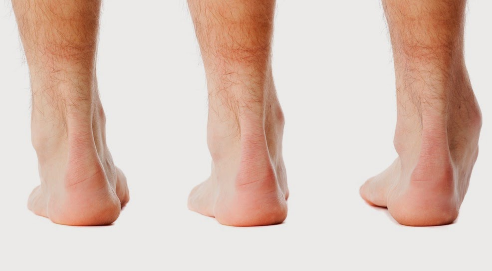 First Sports Podiatry Consultation - Standing Foot Posture Assessment - The Sole Clinic