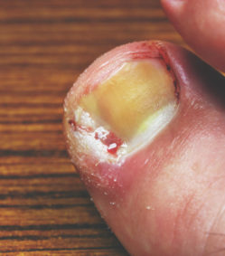 Condition/Treatment: Painful Ingrown Toenails