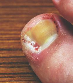 Condition/Treatment: Painful Ingrown Toenails