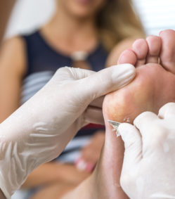 Condition/Treatment: Calluses and Corns