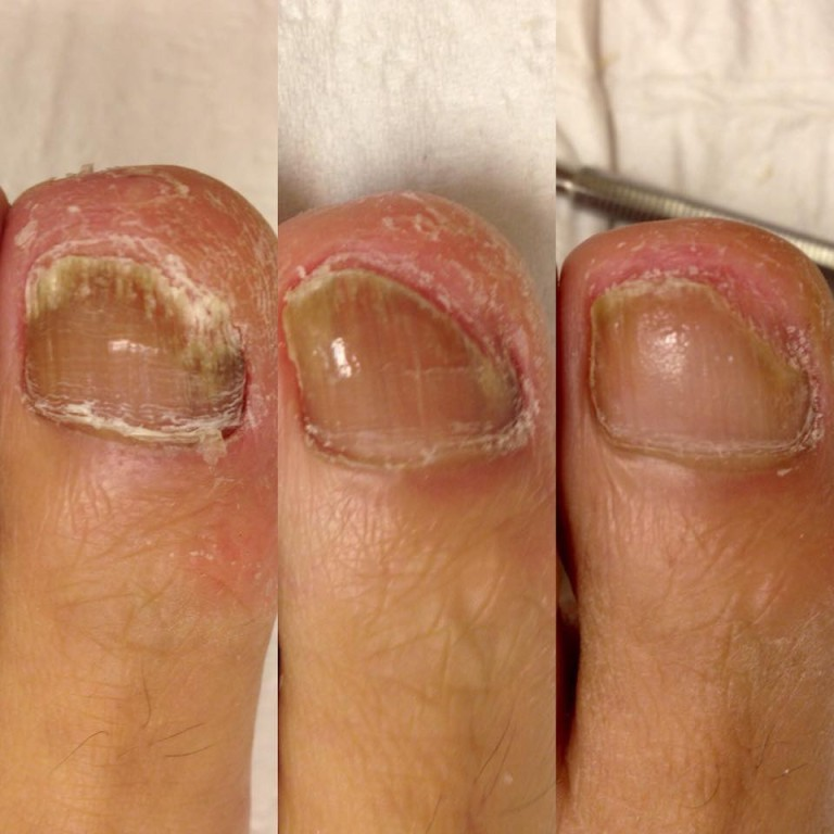 PACT - 20 year old Fungal Problem - The Sole Clinic