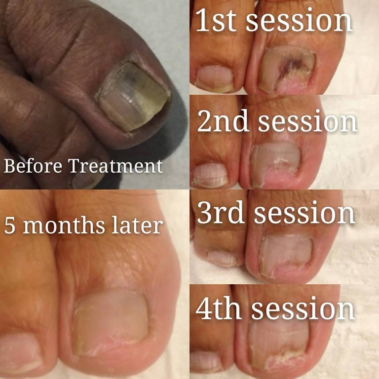 PACT Fungal Problem Progressive - The Sole Clinic