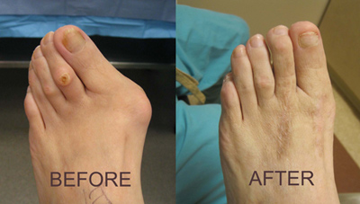 About Bunion - Before and After Surgery - The Sole Clinic