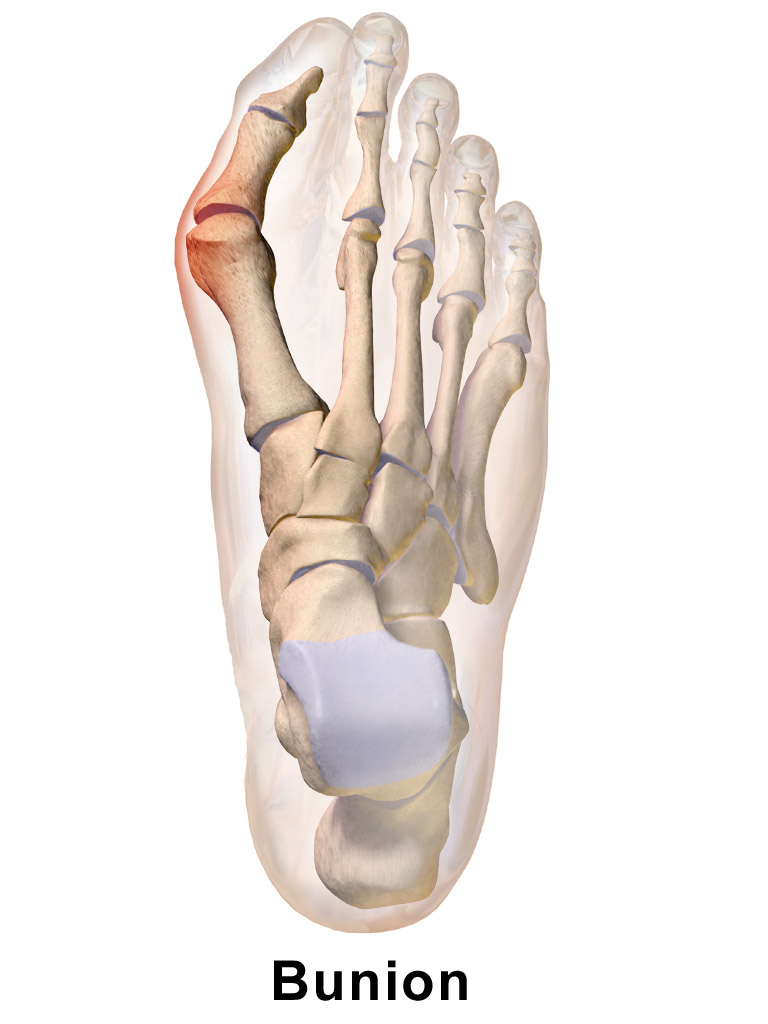 About Bunions - The Sole Clinic