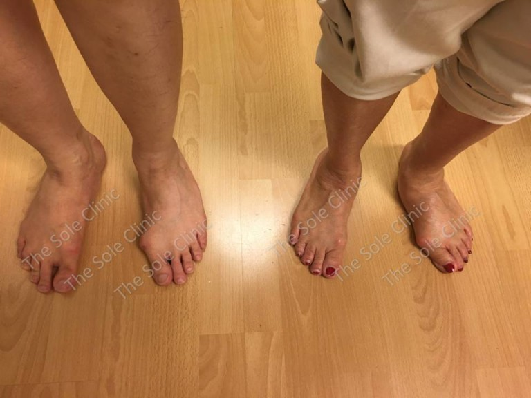 Genetics - About Bunions - The Sole Clinic