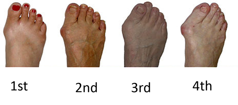 About Bunions - Stages of Development - The Sole Clinic