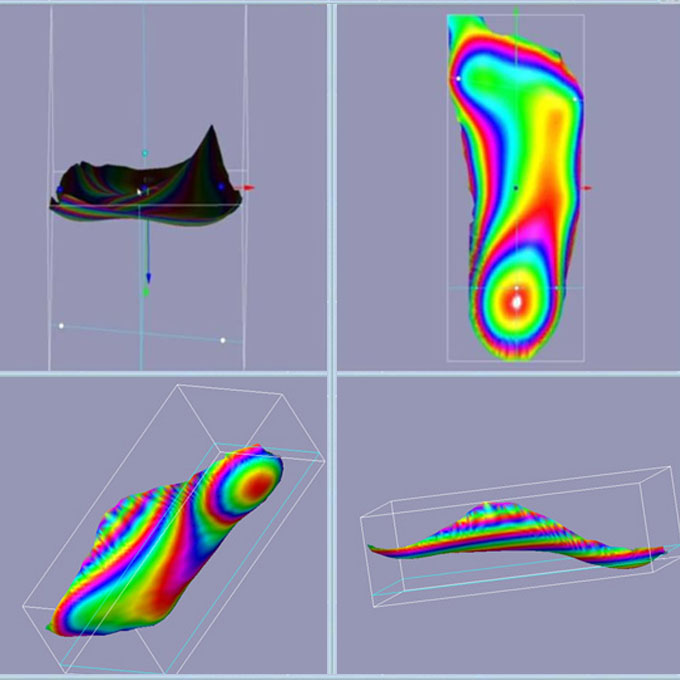 Custom Insoles - 3D Feet Scans - The Sole Clinic