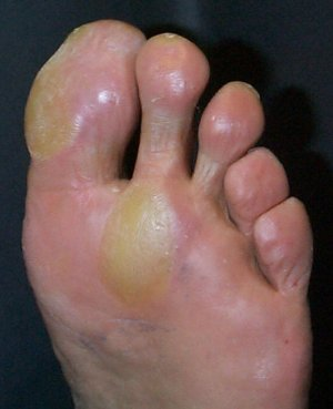 Feet Changing Corns and Calluses - The Sole Clinic