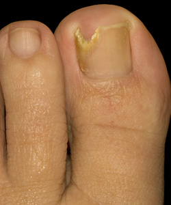 Feet Changing - Fungal Nail Infection