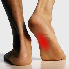 Feet Changing - Painful Arch - The Sole Clinic