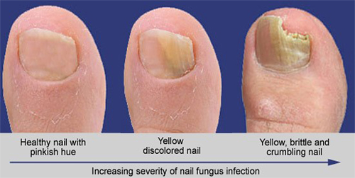 PACT - Fungus Increasing Severity - The Sole Clinic